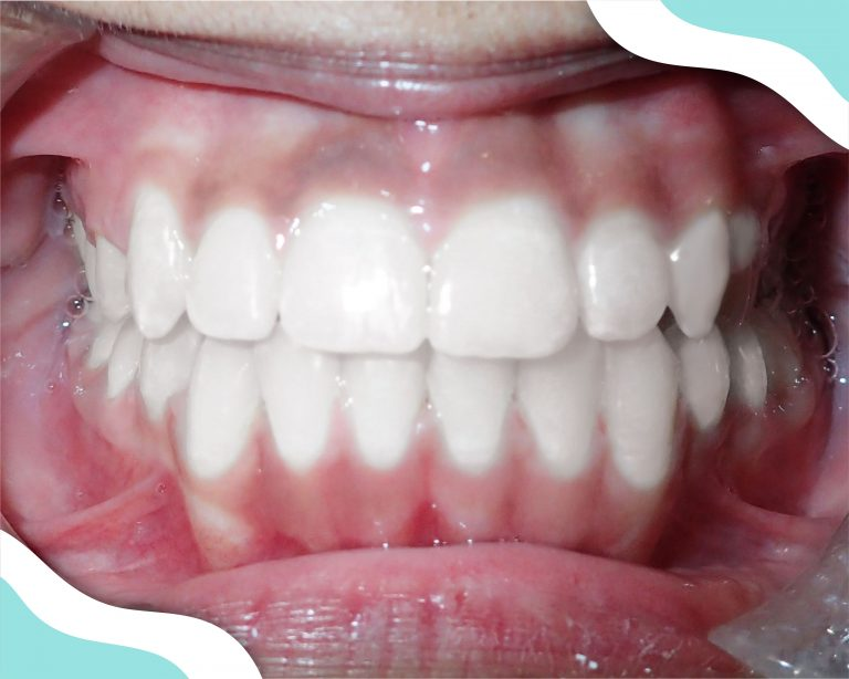 Braces Braces in Atlanta patient image of teeth after successful orthodontic treatment.