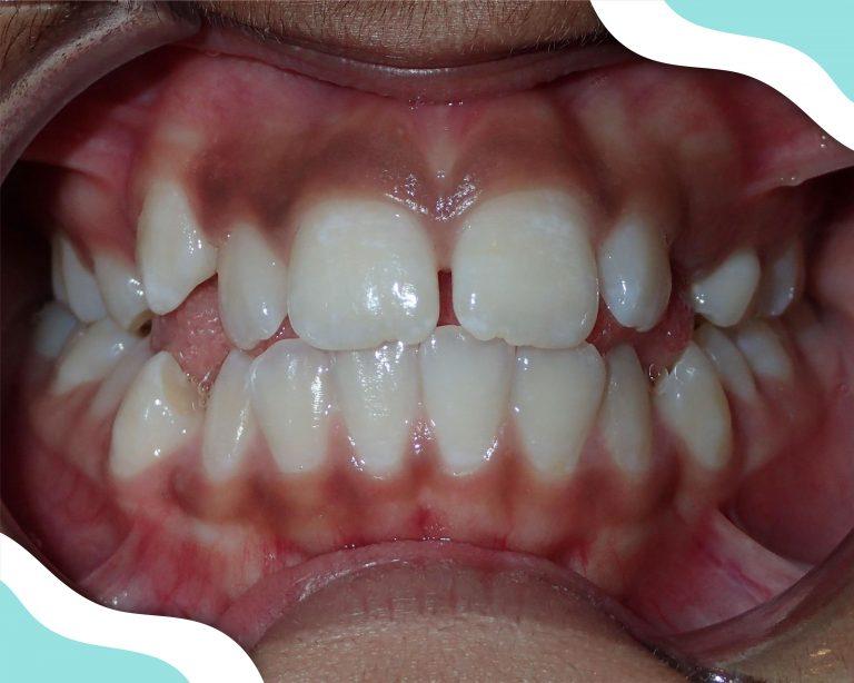 Braces Braces in Atlanta patient image of teeth before orthodontic treatment.